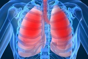 Пневмония или воспаление легких