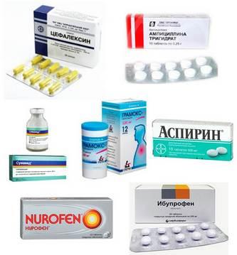 Лекарства, которые могут приниматься для лечения лакунарной ангины