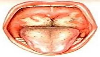 Фибринозная ангина