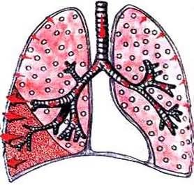 Поражение доли легкого при крупозной пневмонии