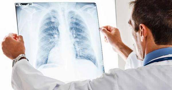 Диагностика абсцедирующей пневмонии