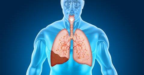 Пораженное легкое при пневмонии