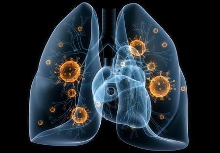 Патогенные бактерии в легких