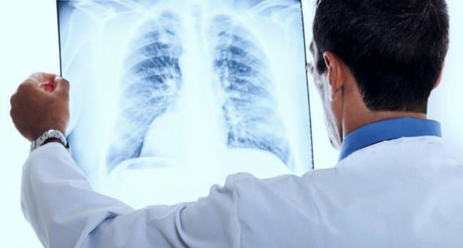 Пульмонолог изучает снимок легких